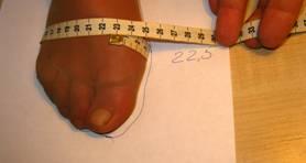 Операция по удалению косточки на большом пальце ноги
